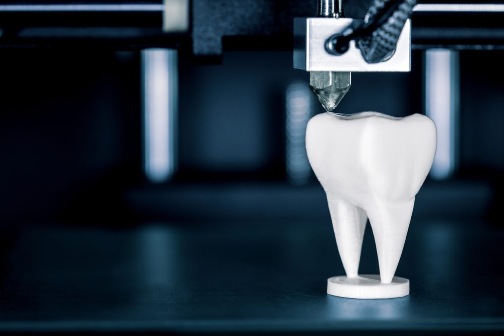 Night guards and retainers future of 3D printing in dentistry
